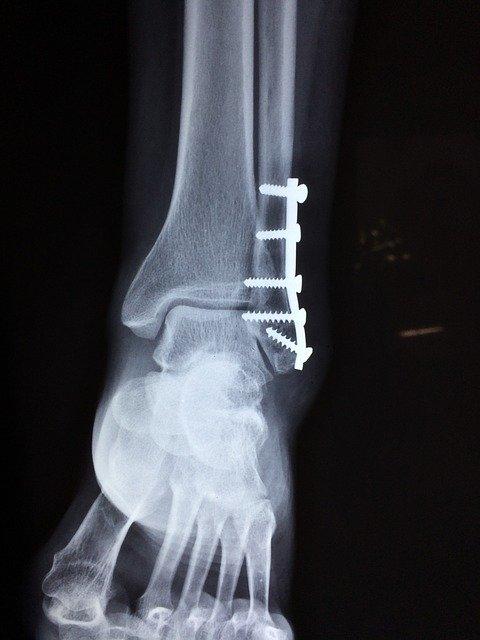Ile zadośćuczynienia za złamanie kości podudzia?